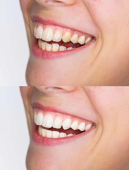 Teeth Whitening Service Riverside CA Smile Advantage