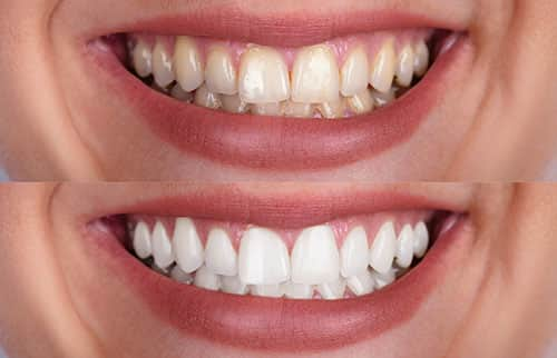 teeth whitening in riverside, ca